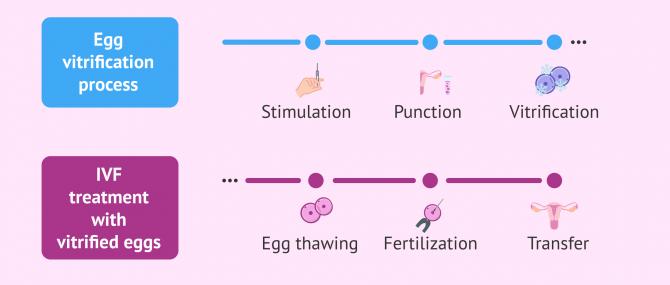 Imagen: IVF process with frozen eggs