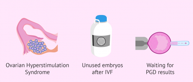 When to opt for embryo vitrification