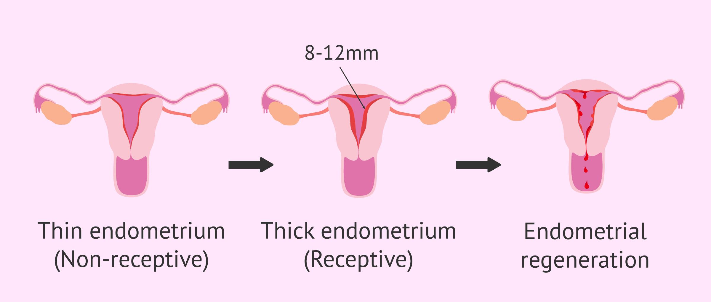 Imagen: Stages in endometrium and uterine receptivity