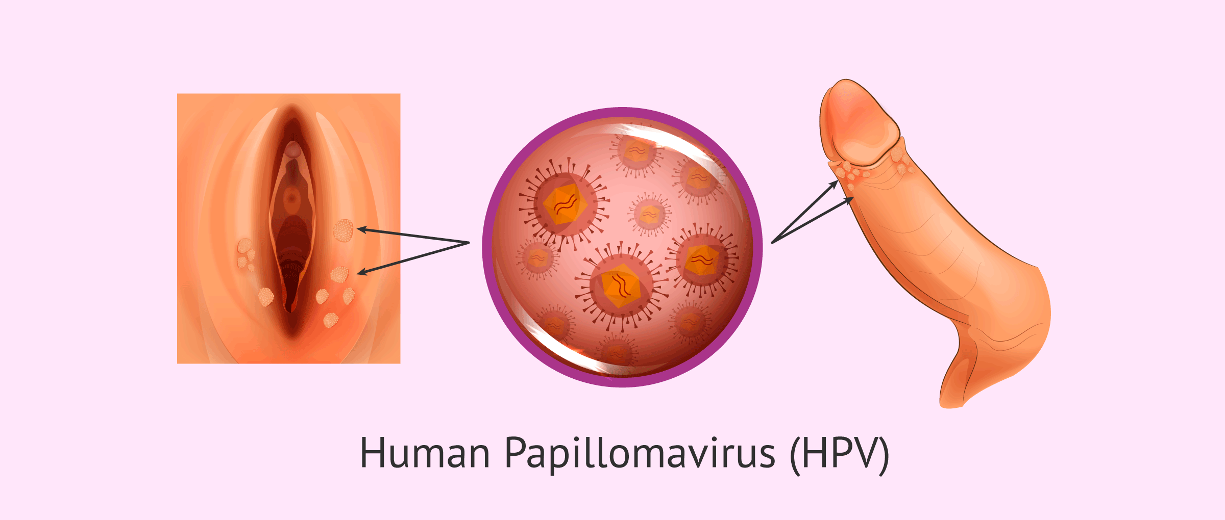 Imagen: Genital Warts caused by HPV