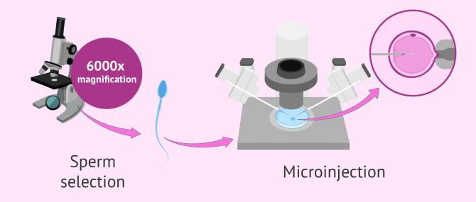 How does IMSI IVF work?