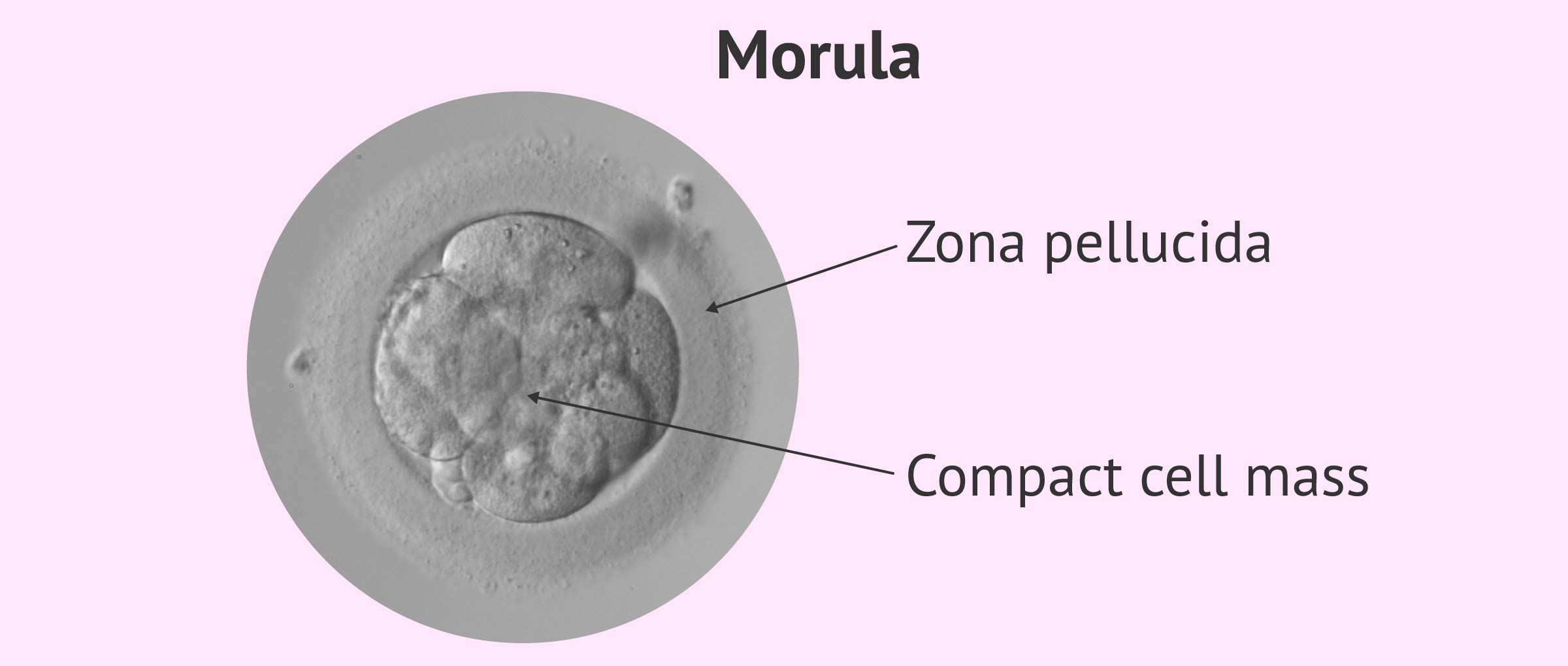 Imagen: Structure of a compact morula